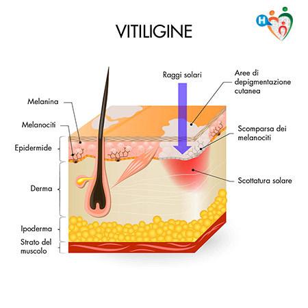 immagine che mostra cosa succede alla pelle quando affetta da vitiligine
