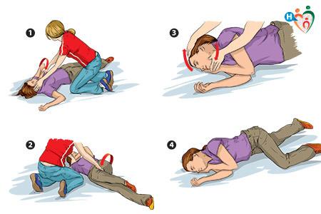 immagine che mostra in 4 passaggi come intervenire su una persona in preda a una crisi epilettica