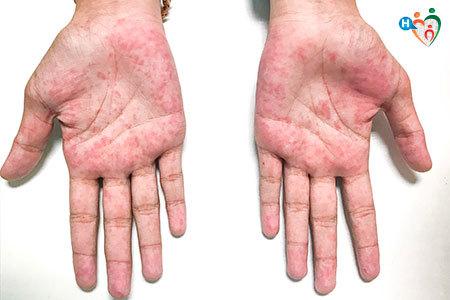 Immagine che mostra la sindrome dei guanti e delle calze.