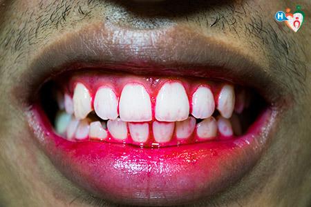 Immagine che mostra una bocca con sanguinamento dalle gengive