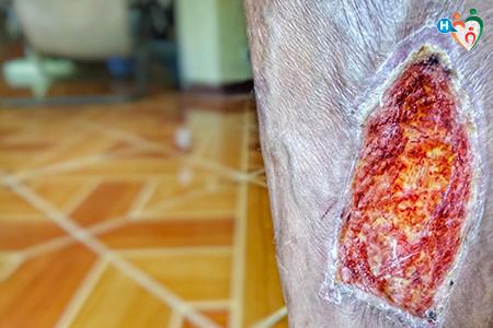 Immagine che mostra una profonda ferita, detta fascite necrotizzante