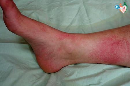 Immagine di un piede con grosse e dolorose chiazze rosse