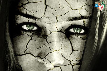 Immagine di una ragazza dalla pelle secca