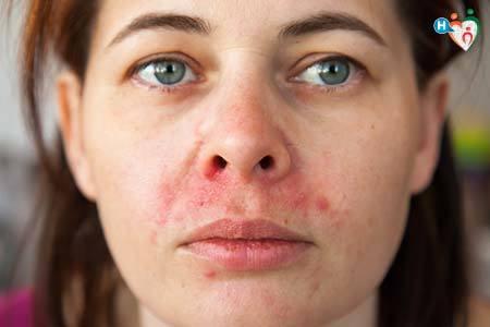 Dermatite Seborroica - Viso