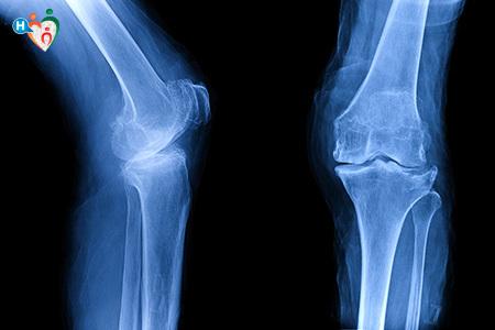 Imagine ai raggi X delle ginocchia