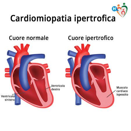 Immagine che mostra la differenza tra un cuore normale e uno con cardiomiopatia ipertrofica