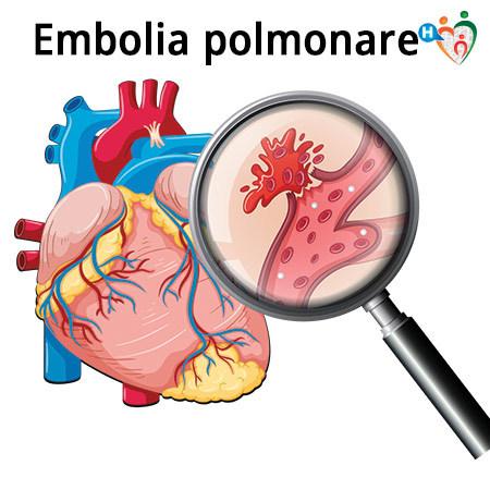 Immagine che mostra cosa succede quando il paziente è affetto da una embolia polmonare