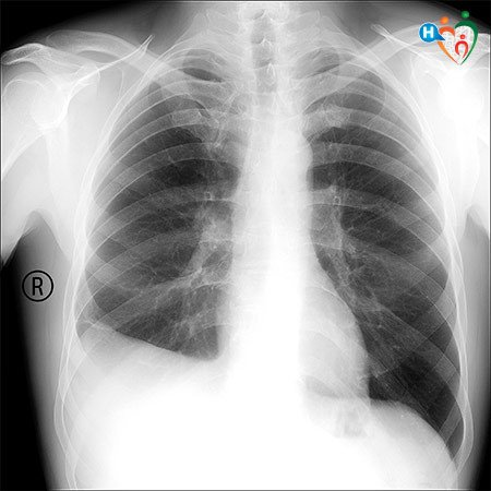 Immagine che mostra i polmoni di un paziente affetto da pleurite