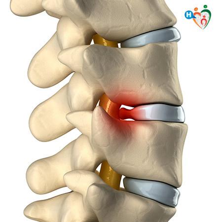 Immagine che mostra in cosa consiste l'ernia al disco e come fa a comportare dolore