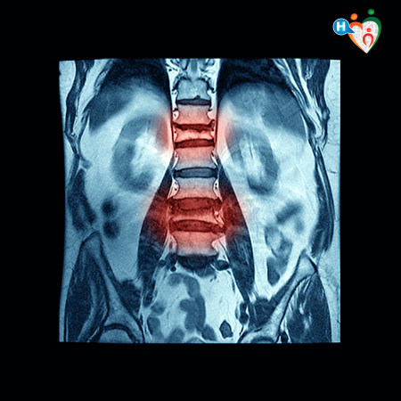 Imagine che mostra il restringimento della colonna spinale che provoca dolore nel paziente