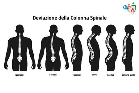 Immagine che mostra la differenza tra una colonna vertebrale normale e una che soffre di cifosi, lordosi e scoliosi