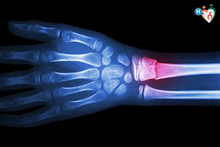 Immagine a raggi X di un polso danneggiato