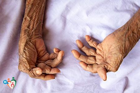Immagine che mostra le mani di una donna anziana deformate dall'artrite
