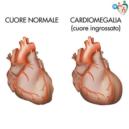 Immagine che mostra la differenza tra un cuore sano e uno malato