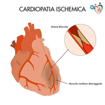 immagine che mostra in cosa consiste una cardiopatia ischemica