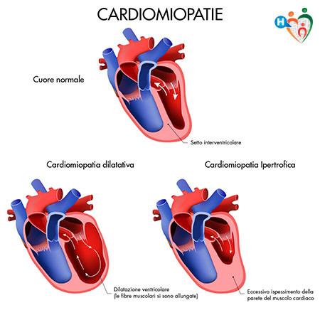 immagine che mostra un cuore affetto da cardiomiopatia