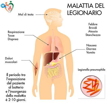 Immagine che mostra i sintomi della legionella