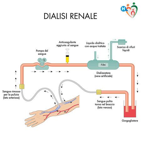 Immagine che mostra il meccanismo della dialisi renale