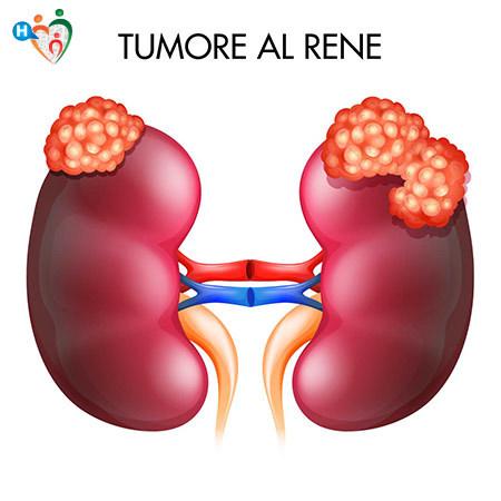 immagine di un rene affetto da tumore