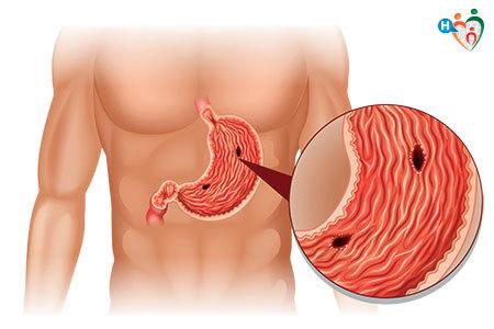 Immagine che mostra delle ulcere all'interno dello stomaco
