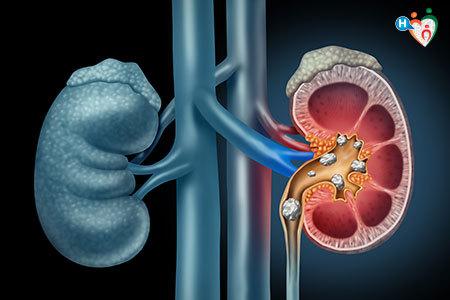 il tuo intestino crasso può causare dolore allinguine