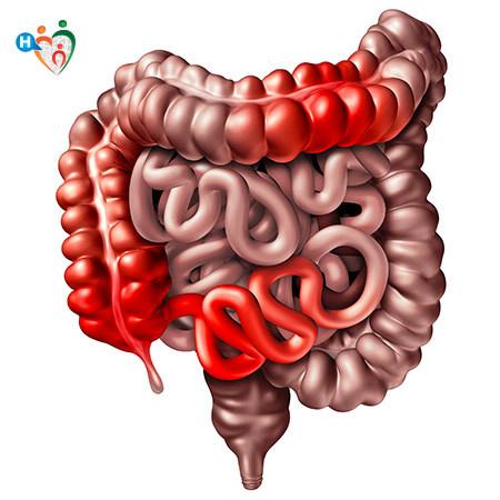 Immagine che mostra in cosa consiste il mordo di Crohn