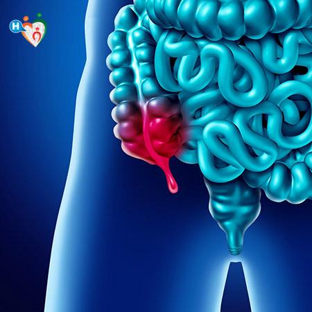 Immagine che mostra che cos'è l'appendicite