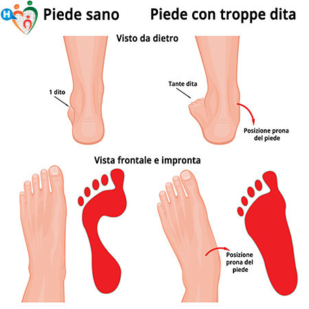Immagine di una caviglia danneggiata