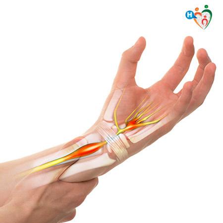 Dolore al braccio sinistro: quali sono le cause e i rimedi?