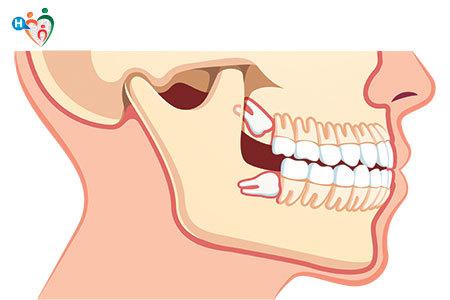Immagine che mostra un lato della mandibola