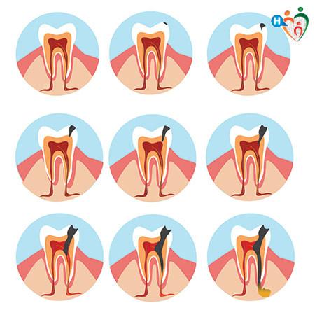 Immagine che mostra come avviene un ascesso ai denti