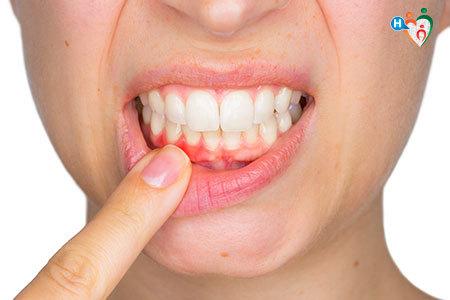 Immagine di una paziente che mostra le gengive arrossate