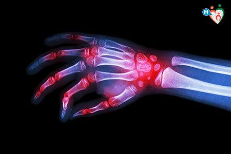 vista a raggi x della mani di una persona che soffre di artrite