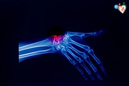 vista a raggi x della mano di un paziente che soffre di sindrome di de quervain