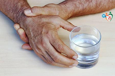 Immagine della mano di un paziente affetto da artrosi