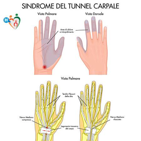 Sindrome del tunnel carpale: perché è frequente durante la gravidanza