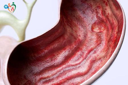 Immagine di un fegato che presenta un ulcera