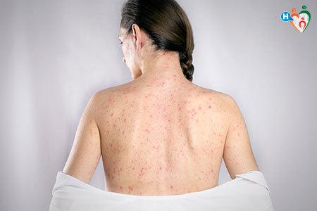 Immagine di una donna con il corpo pieno di puntini rossi per via della rosolia