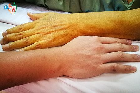 Imagne che mostra due mani al confronto: una sana e una di un uomo con un livello di bilirubina elevato