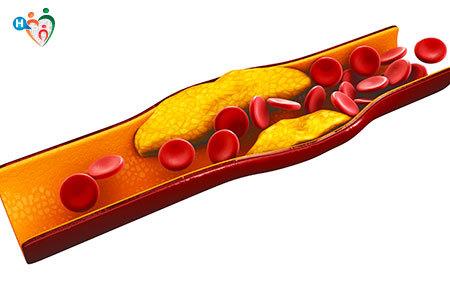 Immagine di una vena ostruita da blocchi di colesterolo