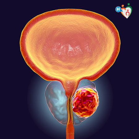 Immagine che mostra dove si trova il cancro all'interno della prostata maschile