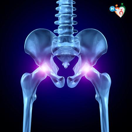 Immagine che mostra l'anca, se infiammata causa la coxalgia