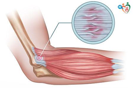 I 4 dolori più comuni per chi pratica la corsa