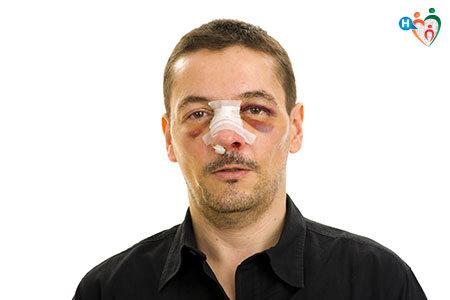 Immagine di un uomo con il naso fratturato