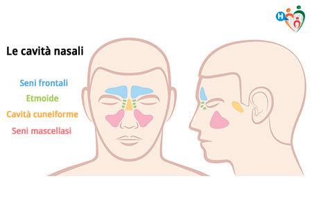 Tumore della cavità nasale e dei seni paranasali