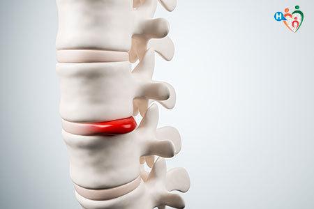 Immagine che mostra cos'è l'ernia del disco, ossi lo schiacciamento dei del disco da parte delle vertebre, che genera a sua volta dolore.