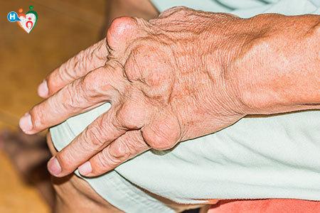 Immagini delle mani deformate di un anziano paziente da una malattia reumatica