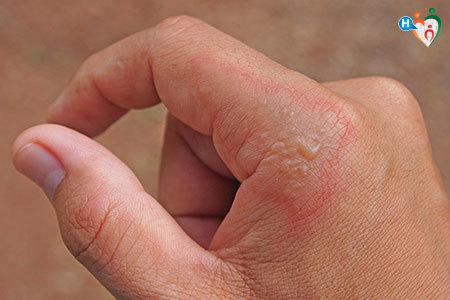 Immagine di una mano che presenta bolle come l'infezionde dell'impetigine