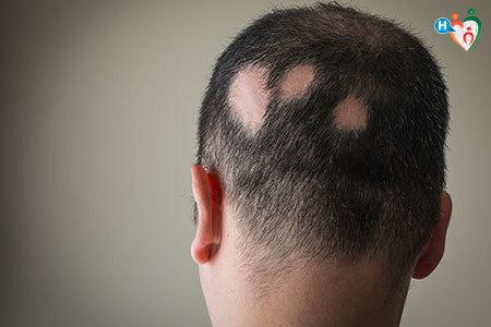 Immagine che mostra la testa din uomo dove a pezzi mancano dei capelli. Questo fenomeno è detto alopecia