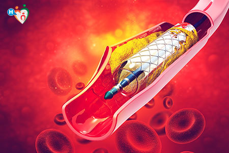 Immagine che mostra uno stent inserito in una vena